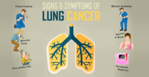 Lung Cancer Diagnosis in Jaipur
