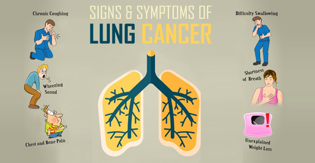 Lung Cancer Diagnosis in Jaipur   Treatment And Symptoms -Dr Nishtha Singh